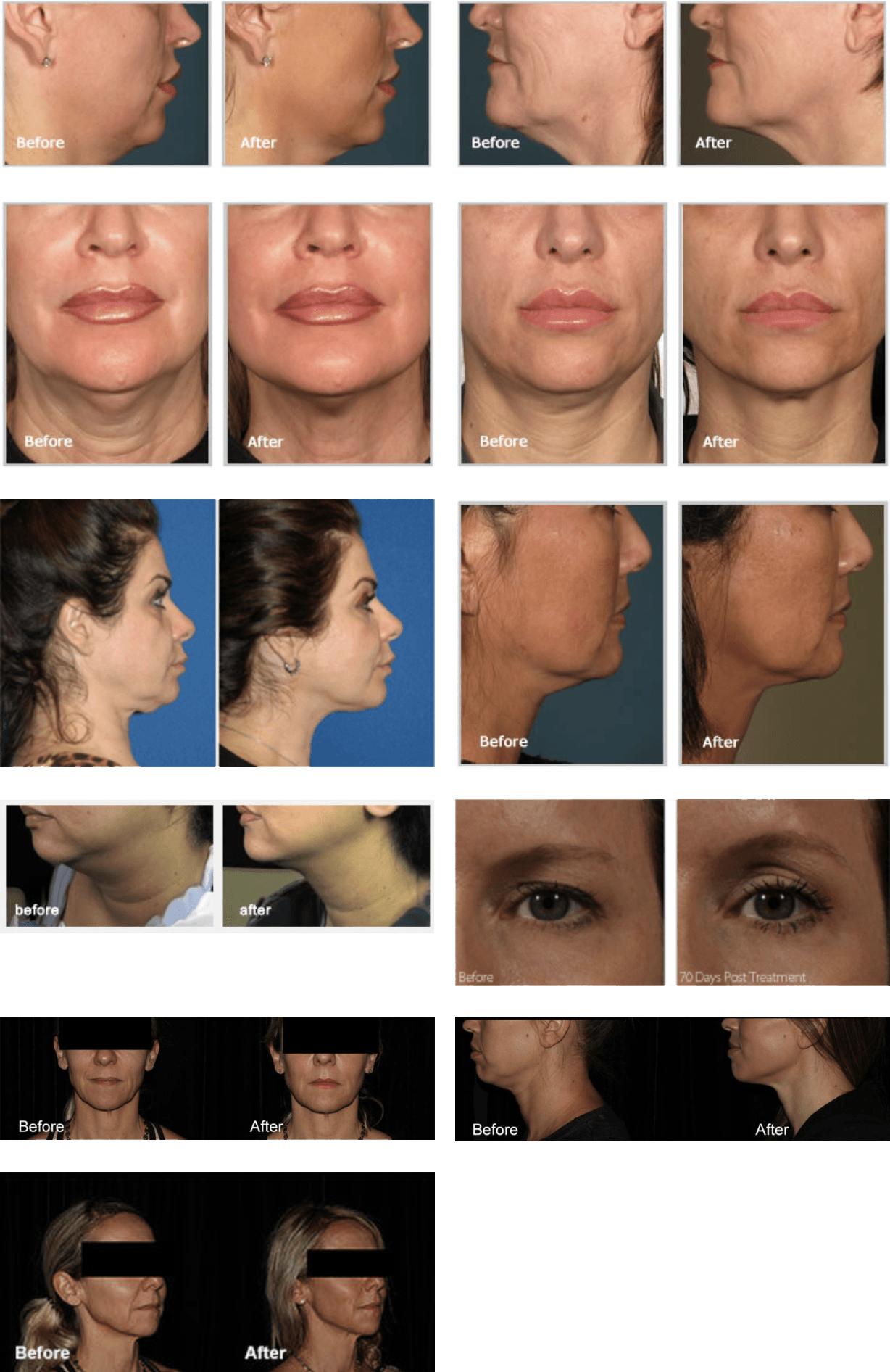 before-after-ultherapy